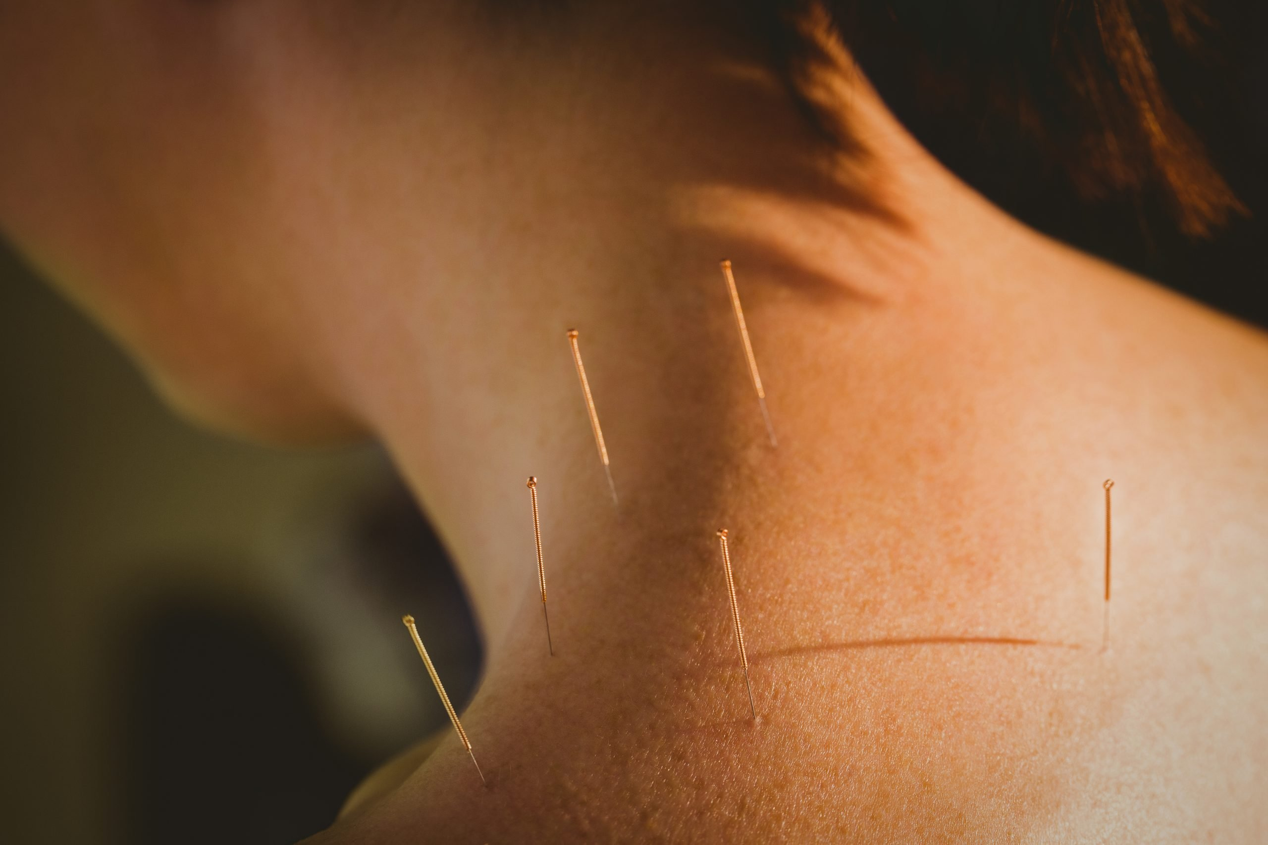 acupuncture in london