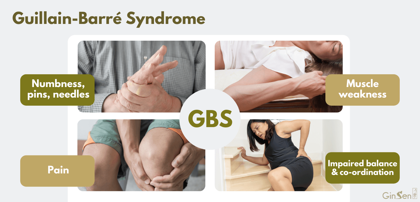 Guillain barre syndrome treatment